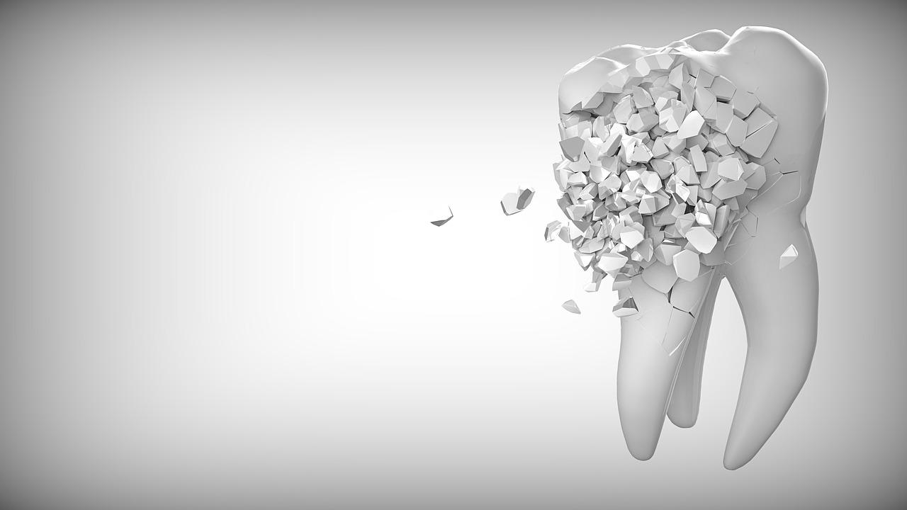 Trápí vás zubní kaz? Léčba je jediné řešení